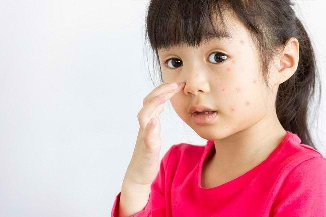 Kenali Gejala Alergi pada Anak Berikut Ini - Alodokter