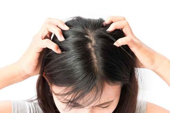 3 Penyebab Kulit Kepala Kering dan Cara Mengatasinya - Alodokter