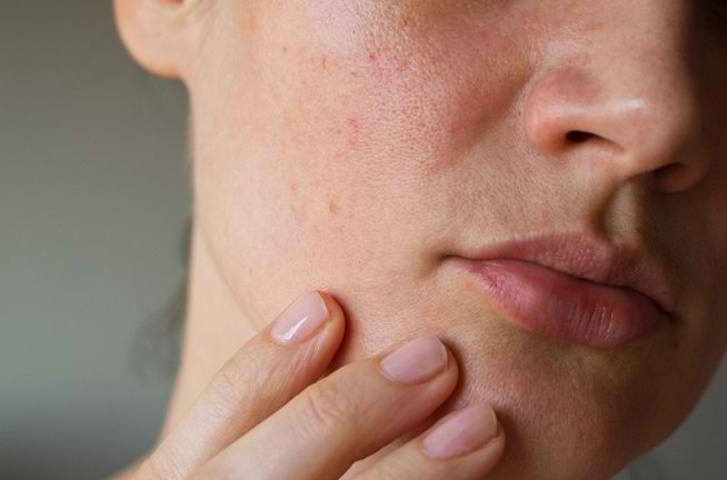 Bintik Merah pada Kulit Dapat Disebabkan 10 Penyakit Berikut Ini - Alodokter