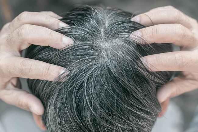 5 Penyebab Uban Muncul di Kepala - Alodokter