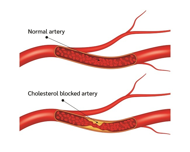 young man with chest pain
