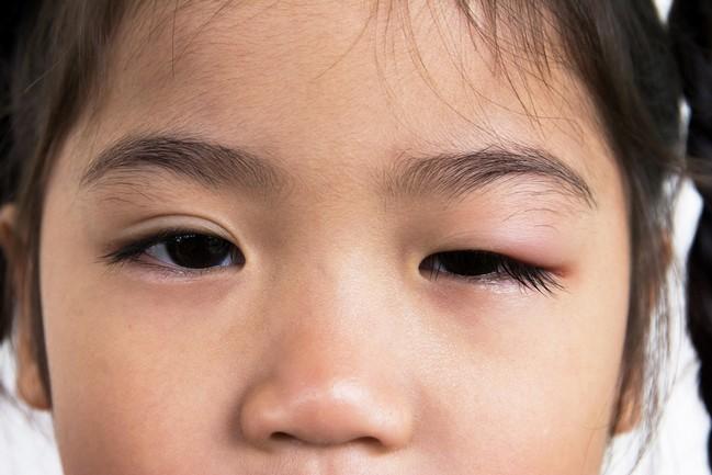 ริดสีดวงตา (Trachoma)