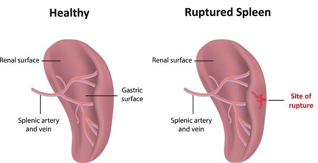 Ruptured,Spleen