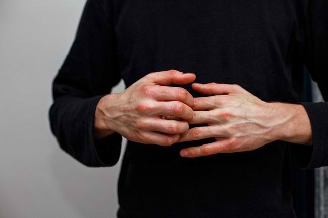 Mengenal Imunodefisiensi Beserta Penyebab dan Cara Menanganinya - Alodokter