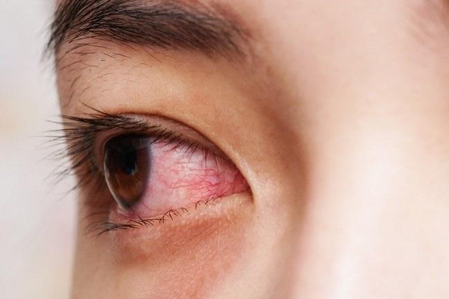 Pilihan Obat Sakit Mata Merah - Alodokter