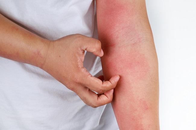 Ketahui Berbagai Penyakit Kulit yang Tidak Menular - Alodokter