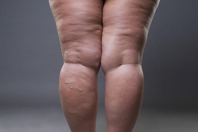 Varicose,Veins,Closeup,,Fat,Female,Cellulite,Legs,On,A,Gray
