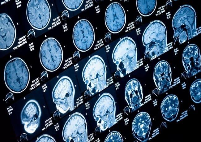 mri otak-min (1)