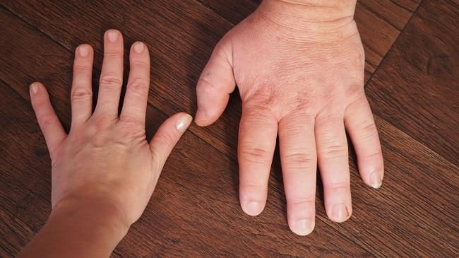 Gigantisme dan Akromegali-min (1)