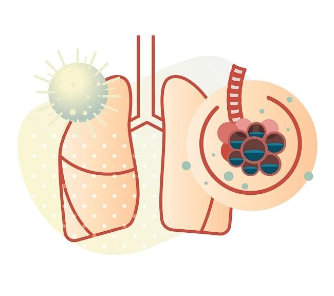 Profilaksis Emboli Paru pada Pasien COVID-19-min