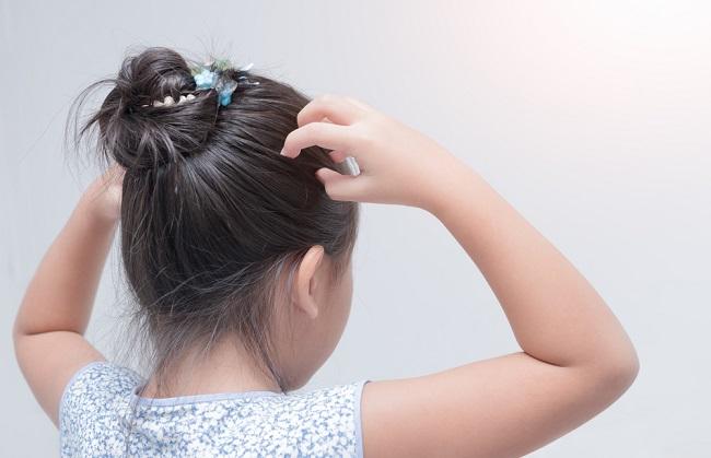 Begini Cara Menghilangkan Kutu Rambut pada Anak - Alodokter