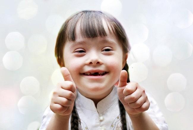 Mengenali Tanda dan Gejala Sindrom Williams - Alodokter