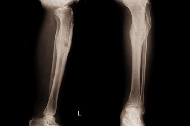Osteomielitis - Alodokter