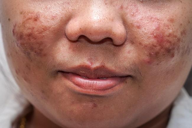 acne vulgaris-min