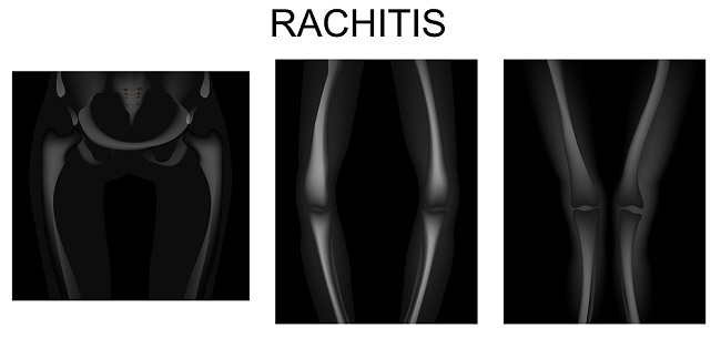 Vector,Illustration,Of,Skeleton,Of,The,Lower,Limbs,In,Rickets