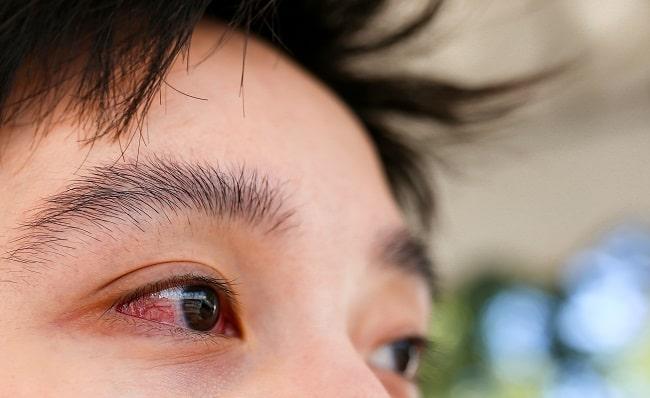 Sindrom Sjogren-min