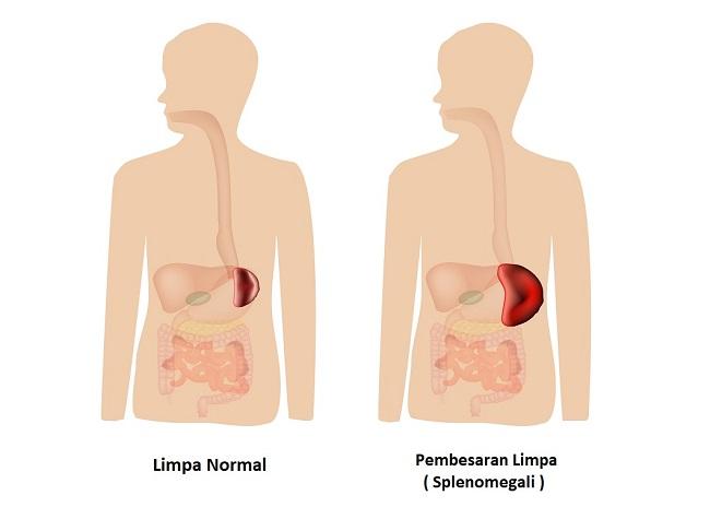 Splenomegaly,Of,The,Spleen.,Enlargement,Of,The,Spleen.,Vector,Illustration