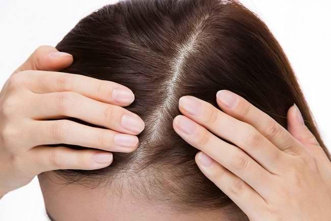 7 Penyakit Kulit Kepala yang Perlu Diketahui - Alodokter