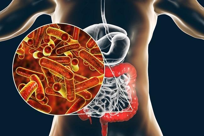 Mekanisme Resistensi Terhadap Antibiotik Empiris Pada Infeksi Shigella spp-min