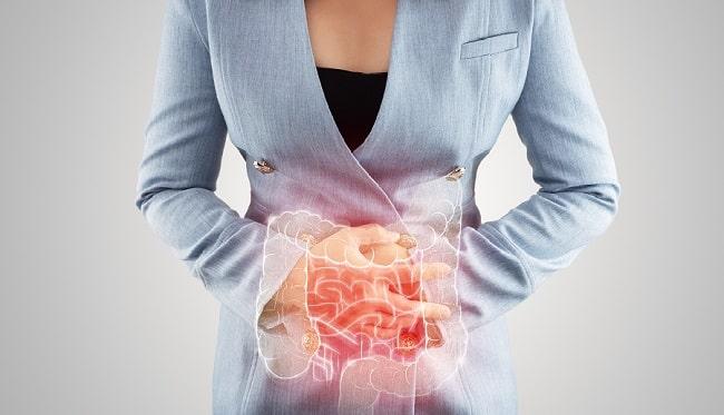 Hubungan NSAID dan Inflammatory Bowel Disease-min