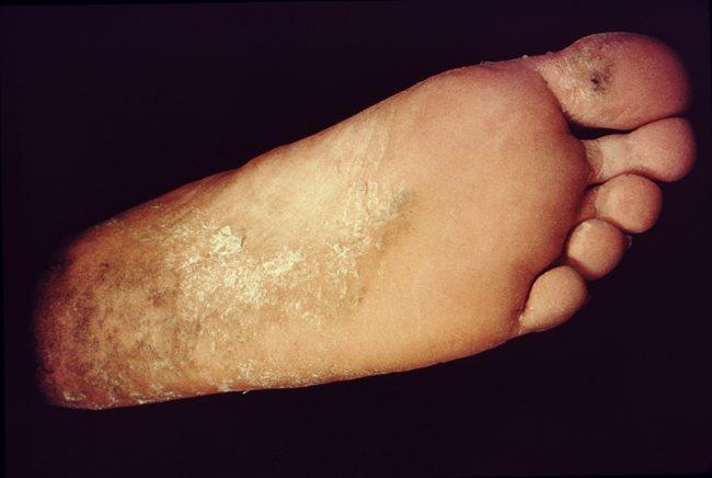 Tinea pedis telapak kaki kanan. Sumber: nn, PHIL CDC, 1975.