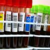 Memahami Karakteristik Golongan Darah A, B, AB, dan O