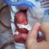 Pentingnya Deteksi Dini pada Retinopathy of Prematurity