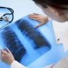 Jenis Penyakit dan Prosedur yang Ditangani Dokter Spesialis Paru