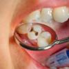 Risiko dan Bahaya Penyakit Gigi Berlubang