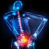 Peran Obat Pelemas Otot dalam Terapi Nyeri Punggung Bawah Nonspesifik