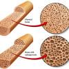 Suplementasi Kalsium dan Vitamin D Terbukti Tidak Menurunkan Insidensi Fraktur Pada Lansia