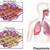 Kortikosteroid untuk Penanganan Pneumonia Komuniti