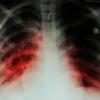 Dosis Terapi Harian atau Intermiten untuk Terapi Antituberkulosis pada Pasien HIV