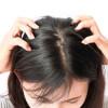 Kulit Kepala Kering, Ini Penyebab dan Cara Mengatasinya