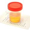 Urinalisis untuk Mendeteksi Infeksi Saluran Kemih pada Bayi Usia <60 Hari