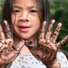 Penatalaksanaan Askariasis Intestinal pada Anak Usia Bawah 6 Tahun