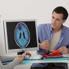 Pembengkakan Otak: Kenali Penyebab dan Tanda-tandanya