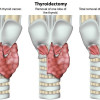 Untung Rugi Operasi Transoral Endoscopic Thyroidectomy via Vestibular Approach (TOETVA)