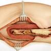 Antibiotik Oral Tidak Kalah Dibandingkan Antibiotik Intravena untuk Osteomielitis - Telaah Jurnal