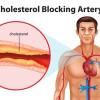 Perbandingan Efikasi Dan Keamanan Obat Antara Agen Penurun Lipid Pada Pasien Hiperkolesterolemia: Meta-analisis Frequentist Network – Telaah Jurnal