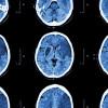Cilostazol Sebagai Terapi Preventif Primer Stroke dan Pencegahan Re-Stenting Pasca PCI