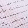 Memahami Gelombang P dalam EKG