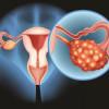 Bedak Talc dan Risiko Kanker Ovarium
