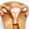 Efek Samping Copper IUD – Apakah Berkurang Seiring Waktu?