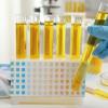 Urinalisis vs Kultur Urine untuk Mendiagnosis Infeksi Saluran Kemih Anak