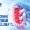 Video Alomedika - Waktu dan Cara Skrining Kanker Kolorektal