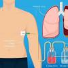 Penggunaan Chest Tube Drainage VS Aspirasi Jarum Pada Kasus Primary Spontaneous Pneumothorax