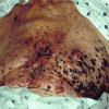 Hydrochlorothiazide dan Risiko Melanoma Maligna