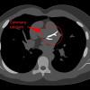 Pemeriksaan Skor Kalsium (Coronary Artery Calcium Score) untuk Stratifikasi Risiko Kejadian Penyakit Jantung