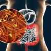 Mekanisme Resistensi Terhadap Antibiotik Empiris Pada Infeksi Shigella spp